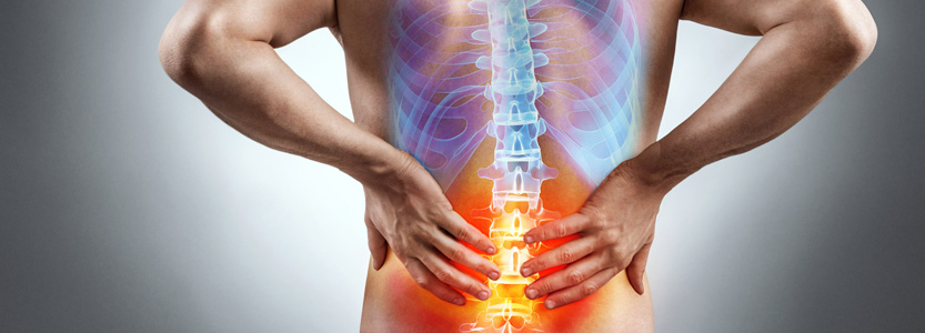 Sciatica: Surgery or Chiropractic?